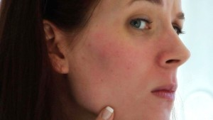 How-to-get-rid-of-redness-on-the-face