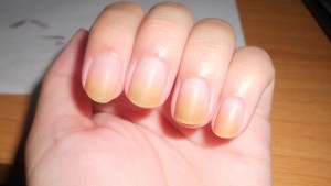 how-to-get-rid-of-yellow-nails-from-nail-polish-–-10-fast-cures