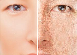 menopause-dry-skin_1