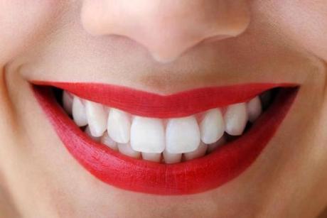 nice-smile