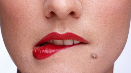 white-head-pimple