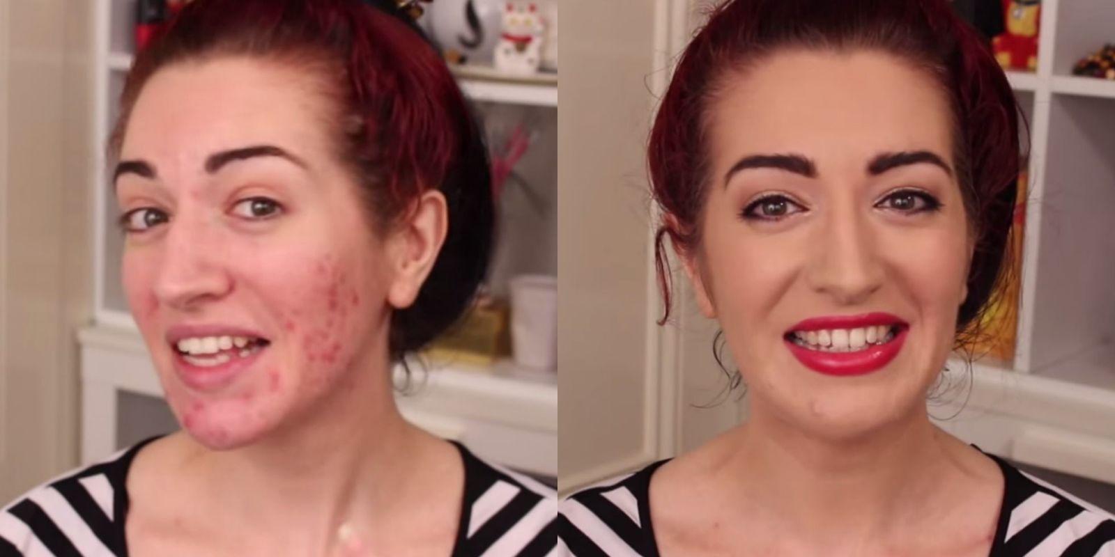 landscape-1433877299-cover-acne-scars-collage