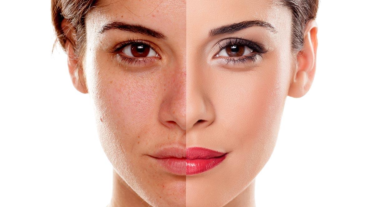 How-to-Brighten-Dull-Skin