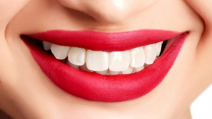 Ada hubungan yang erat antara senyum menawan dengan gigi lebih putih.  Dengan tampilan gigi yang putih 15ed9c4a39